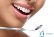 Examen dentaire annuel